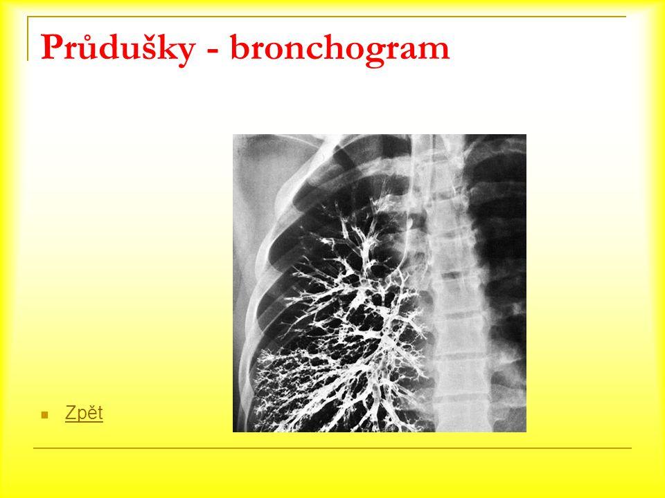 Průdušky - bronchogram