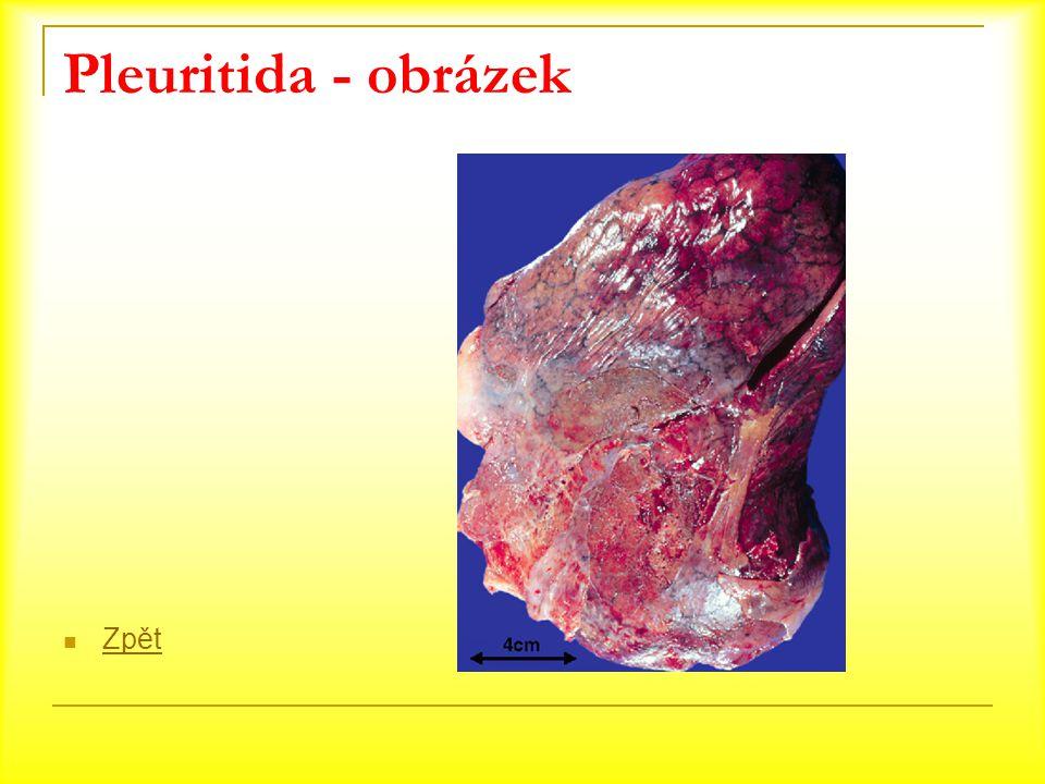 Pleuritida - obrázek Zpět