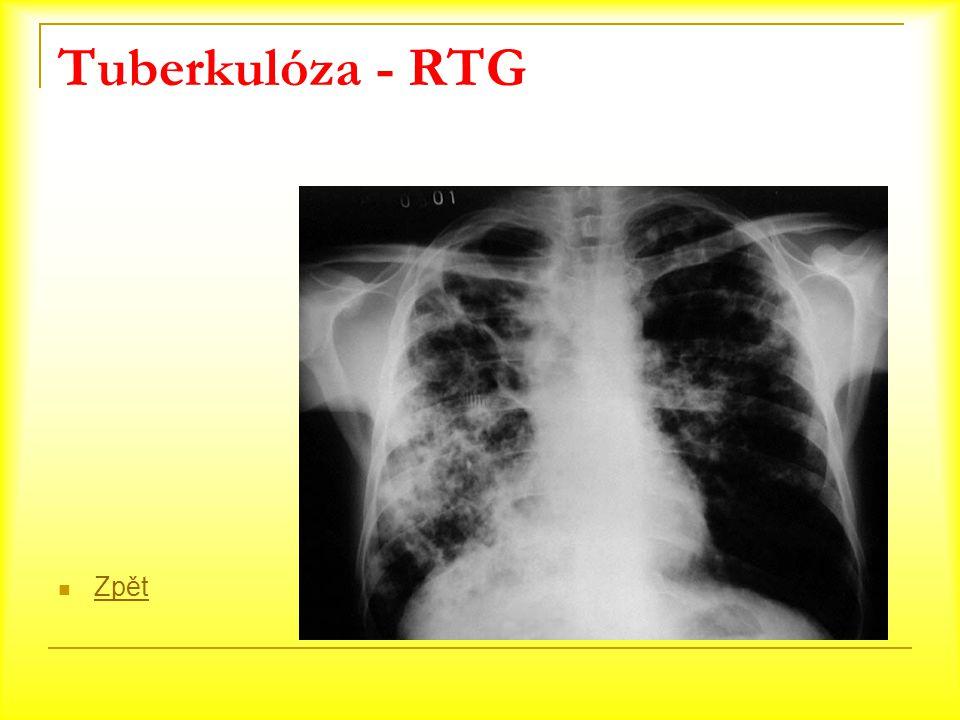 Tuberkulóza - RTG Zpět