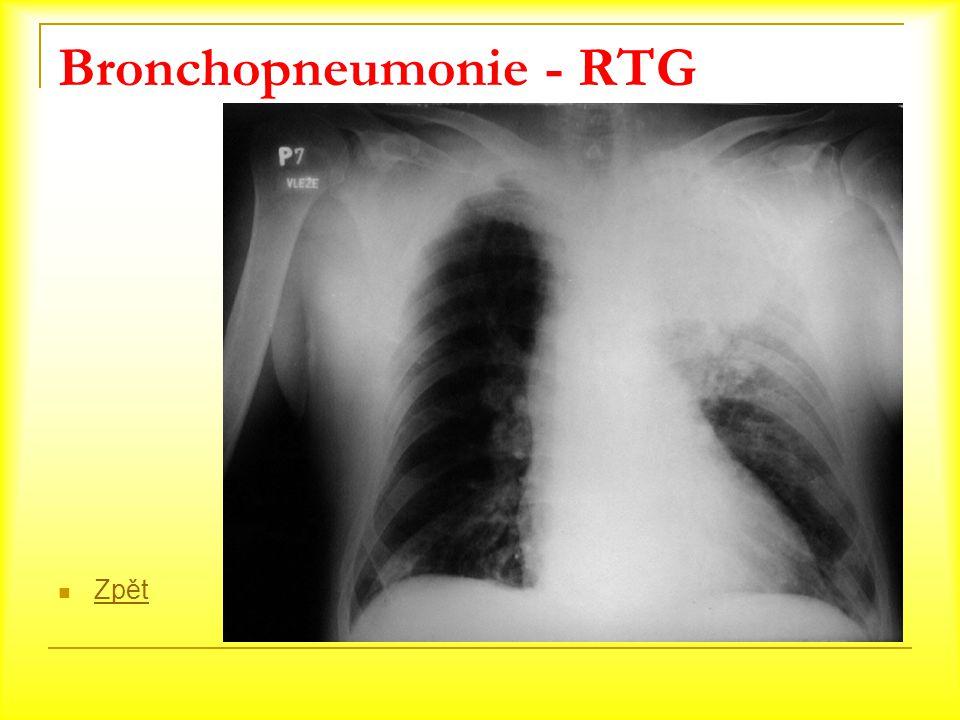 Bronchopneumonie - RTG