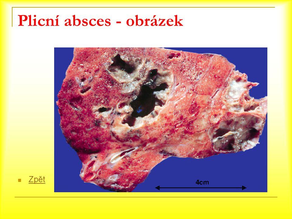 Plicní absces - obrázek