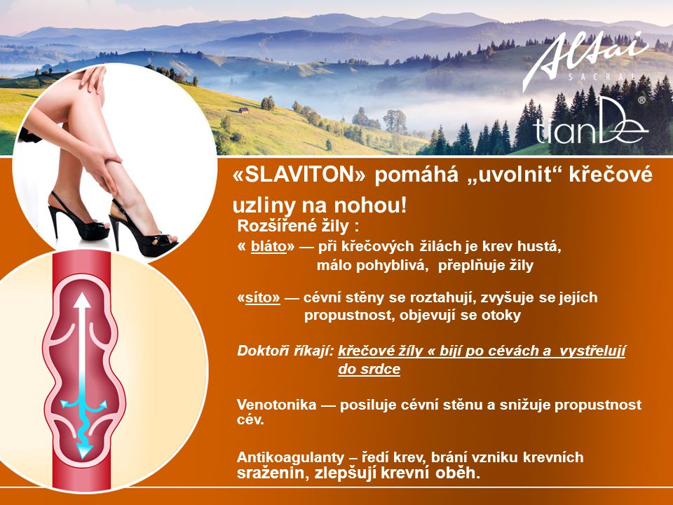 """«SLAVITON» pomáhá """"uvolnit křečové uzliny na nohou!"""