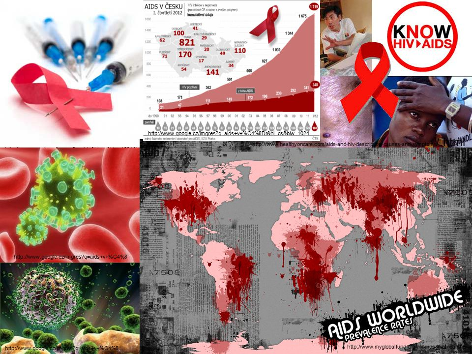 http://www.myglobalfund.org/hiv-aids-in-africa.php http://www.google.cz/imgres q=aids+v+%C4%8Dr&hl=cs&biw=1024.