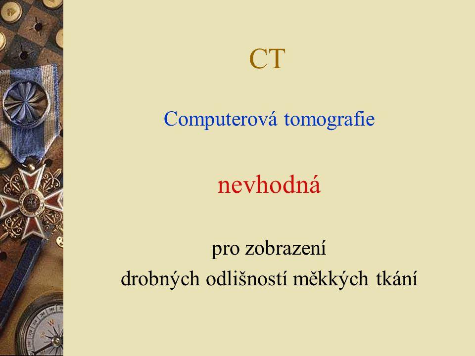 CT nevhodná Computerová tomografie pro zobrazení