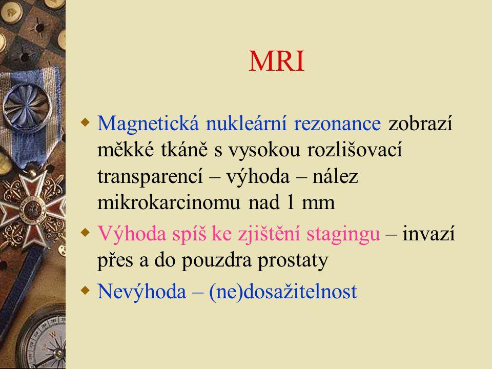 MRI Magnetická nukleární rezonance zobrazí měkké tkáně s vysokou rozlišovací transparencí – výhoda – nález mikrokarcinomu nad 1 mm.