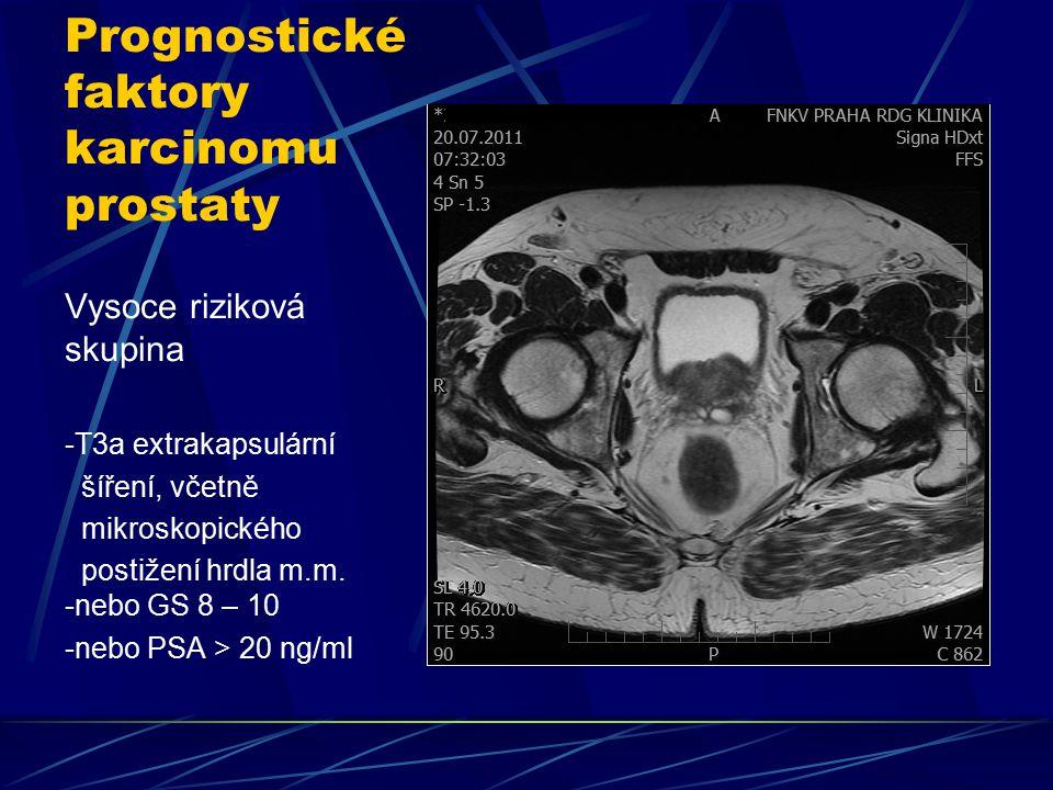Prognostické faktory karcinomu prostaty