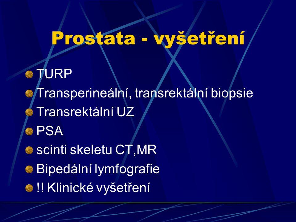 Prostata - vyšetření TURP Transperineální, transrektální biopsie