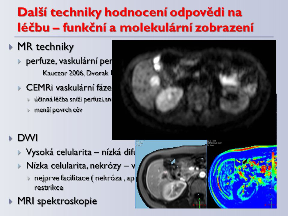 Další techniky hodnocení odpovědi na léčbu – funkční a molekulární zobrazení