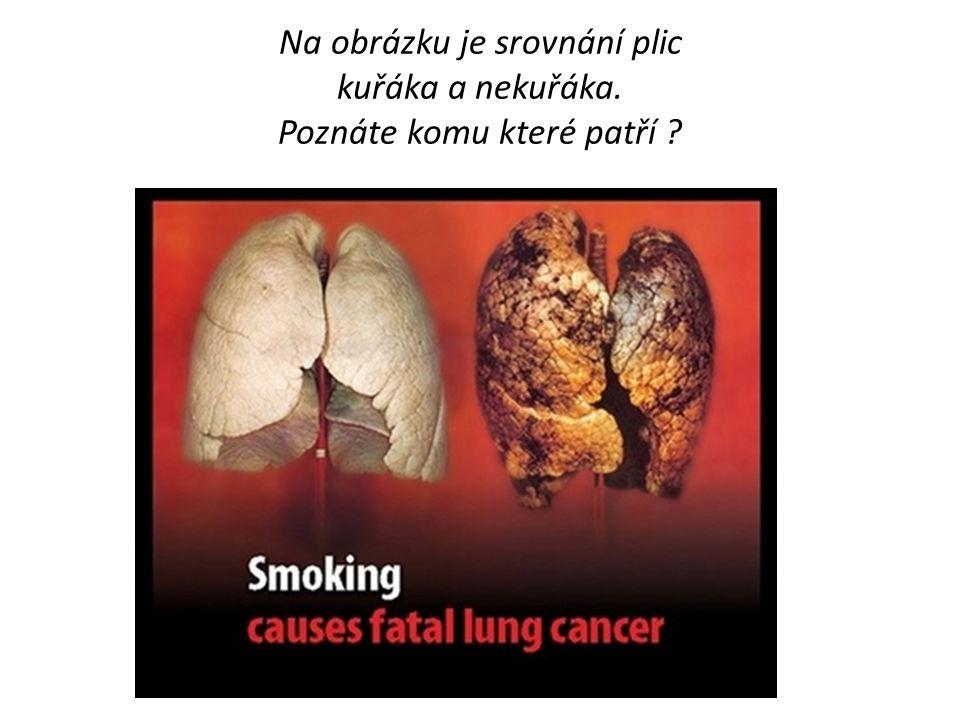 Na obrázku je srovnání plic kuřáka a nekuřáka. Poznáte komu které patří
