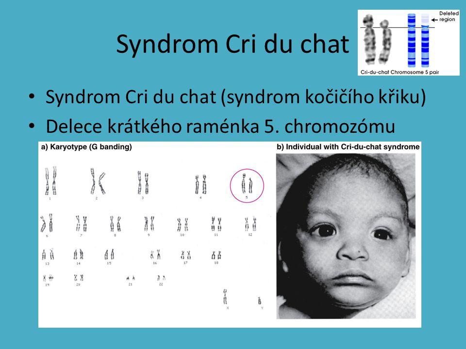 Syndrom Cri du chat Syndrom Cri du chat (syndrom kočičího křiku)