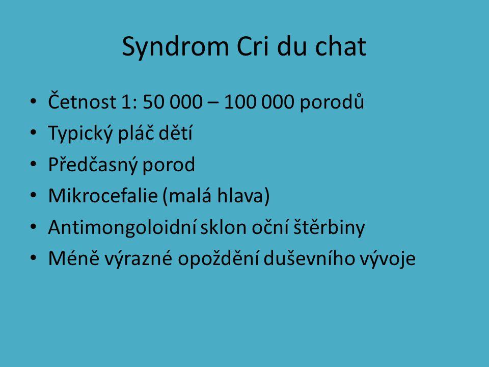 Syndrom Cri du chat Četnost 1: 50 000 – 100 000 porodů
