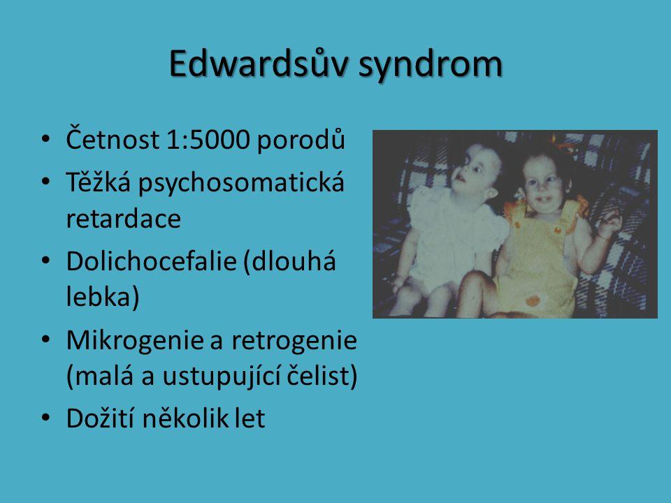 Edwardsův syndrom Četnost 1:5000 porodů