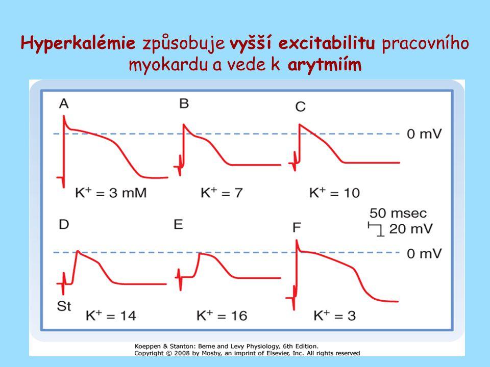 Hyperkalémie způsobuje vyšší excitabilitu pracovního myokardu a vede k arytmiím