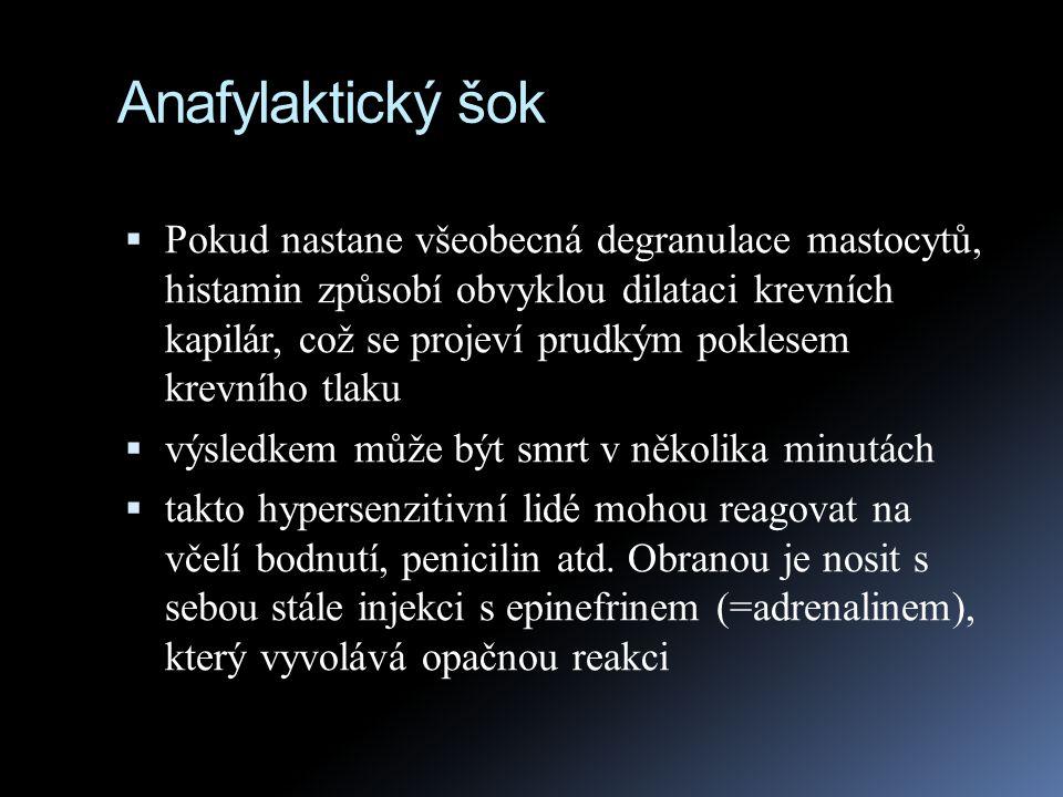 Anafylaktický šok