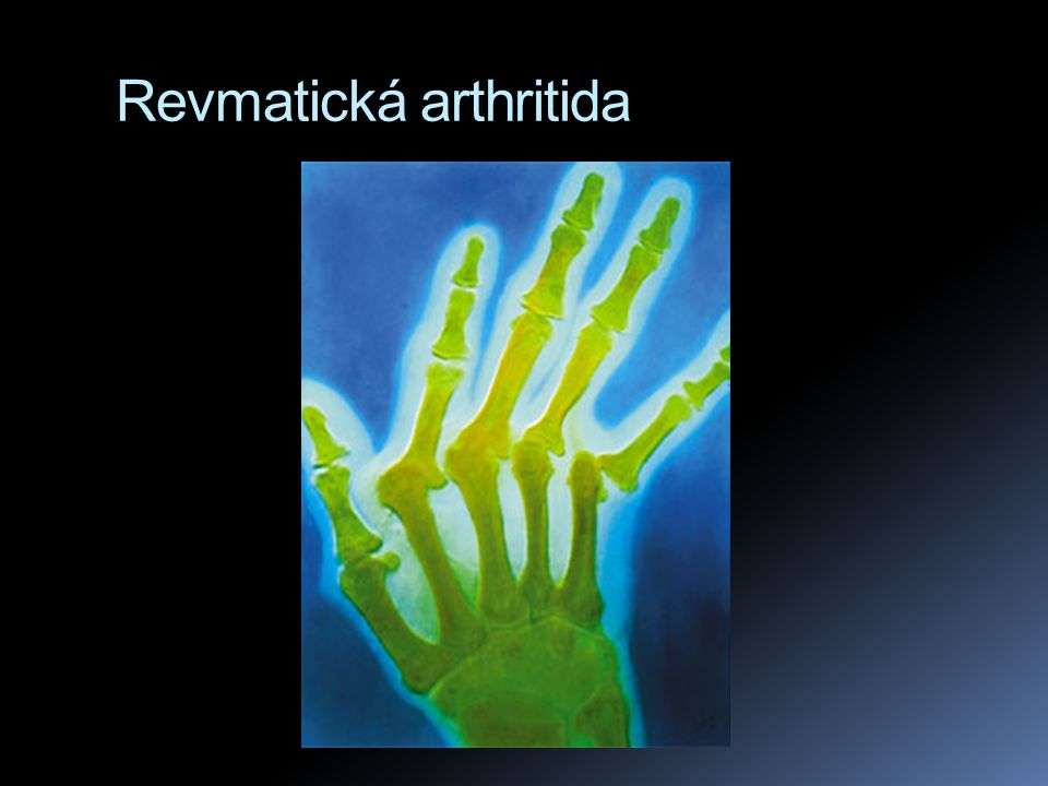 Revmatická arthritida
