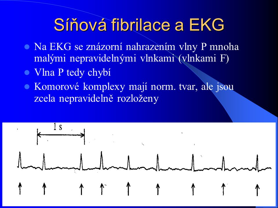 Síňová fibrilace a EKG Na EKG se znázorní nahrazením vlny P mnoha malými nepravidelnými vlnkami (vlnkami F)