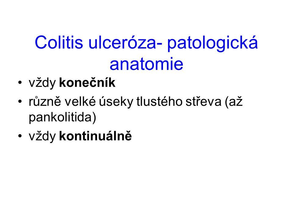 Colitis ulceróza- patologická anatomie