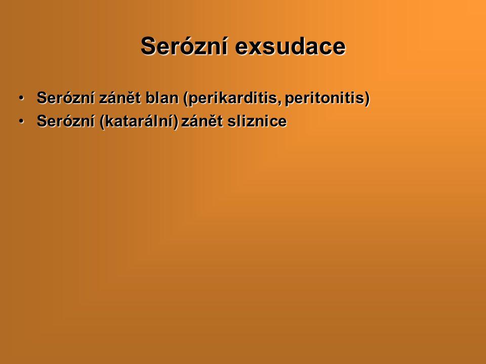 Serózní exsudace Serózní zánět blan (perikarditis, peritonitis)