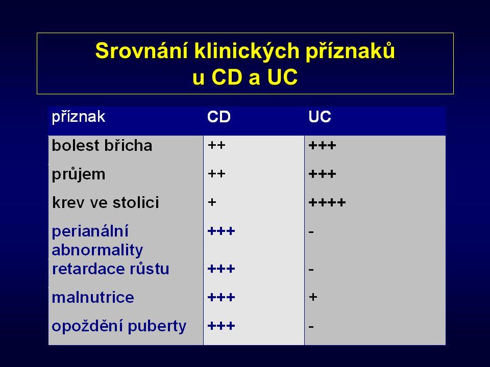 Srovnání klinických příznaků u CD a UC