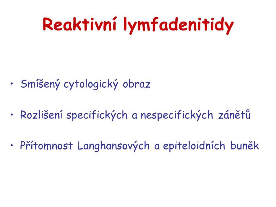 Reaktivní lymfadenitidy