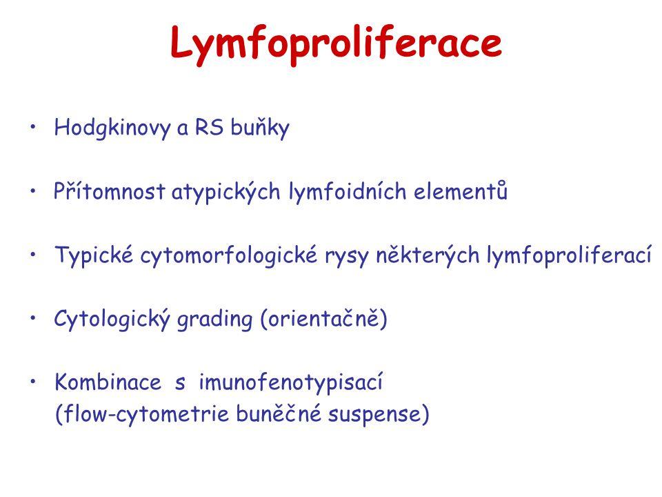 Lymfoproliferace Hodgkinovy a RS buňky