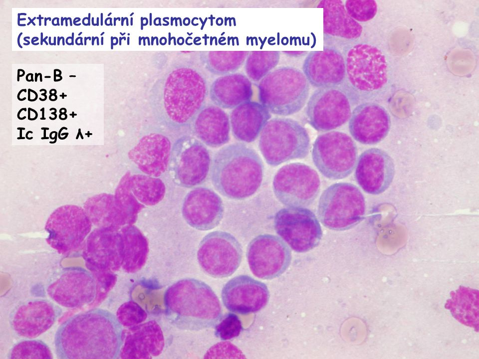 Extramedulární plasmocytom (sekundární při mnohočetném myelomu)