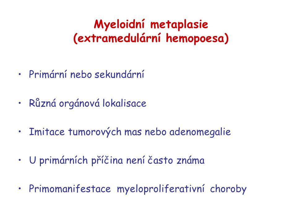 Myeloidní metaplasie (extramedulární hemopoesa)