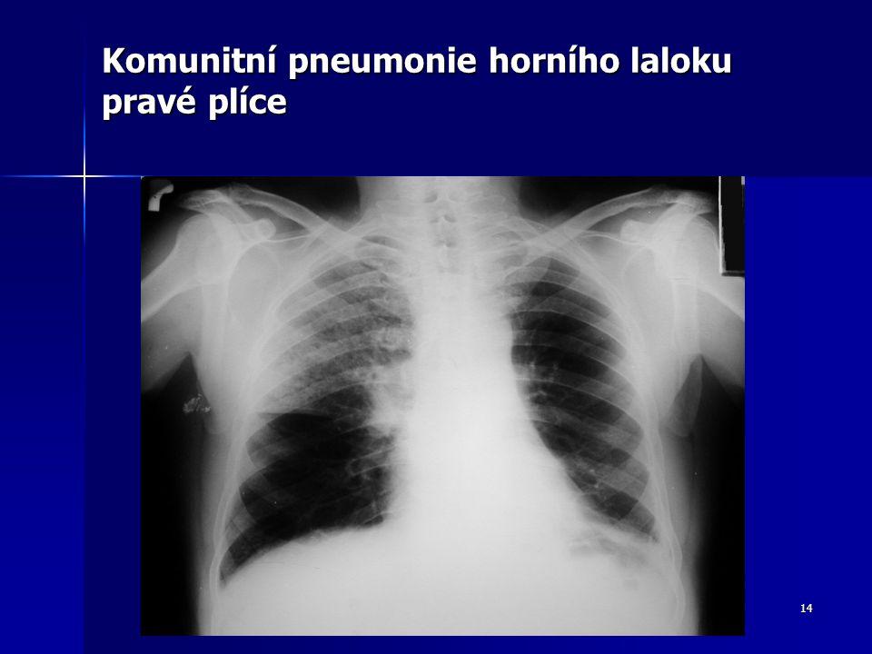 Komunitní pneumonie horního laloku pravé plíce