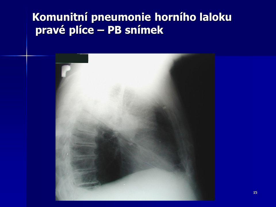 Komunitní pneumonie horního laloku pravé plíce – PB snímek