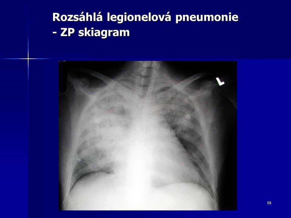 Rozsáhlá legionelová pneumonie