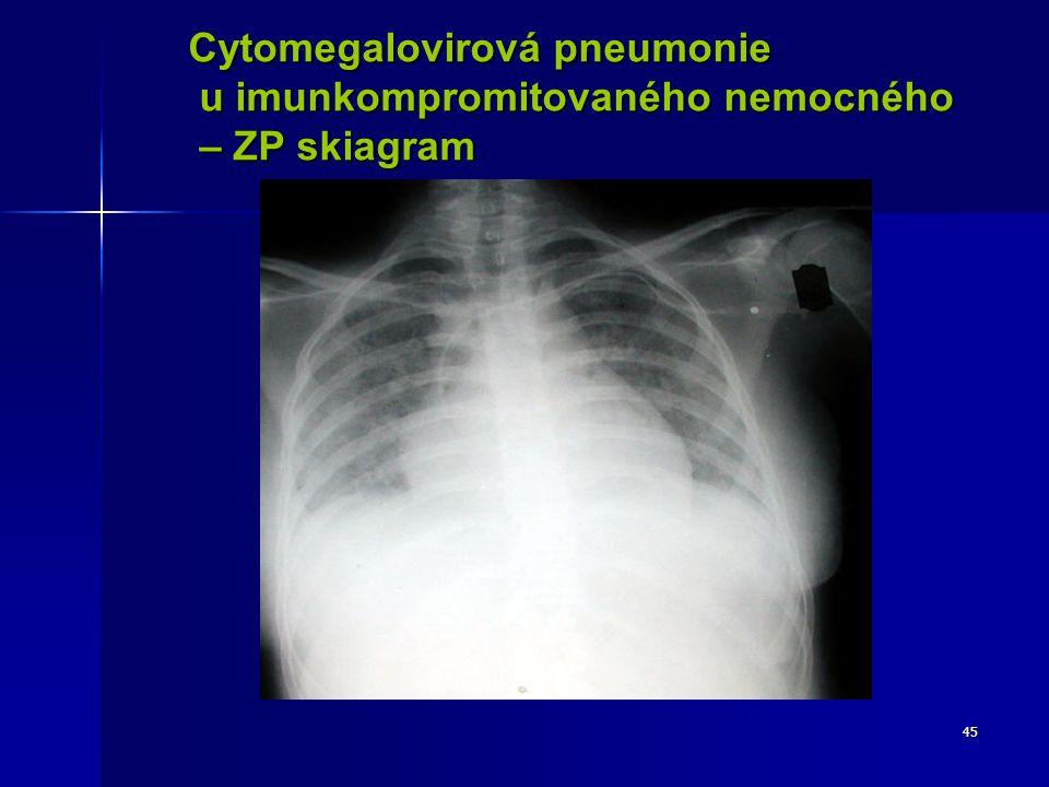 Cytomegalovirová pneumonie
