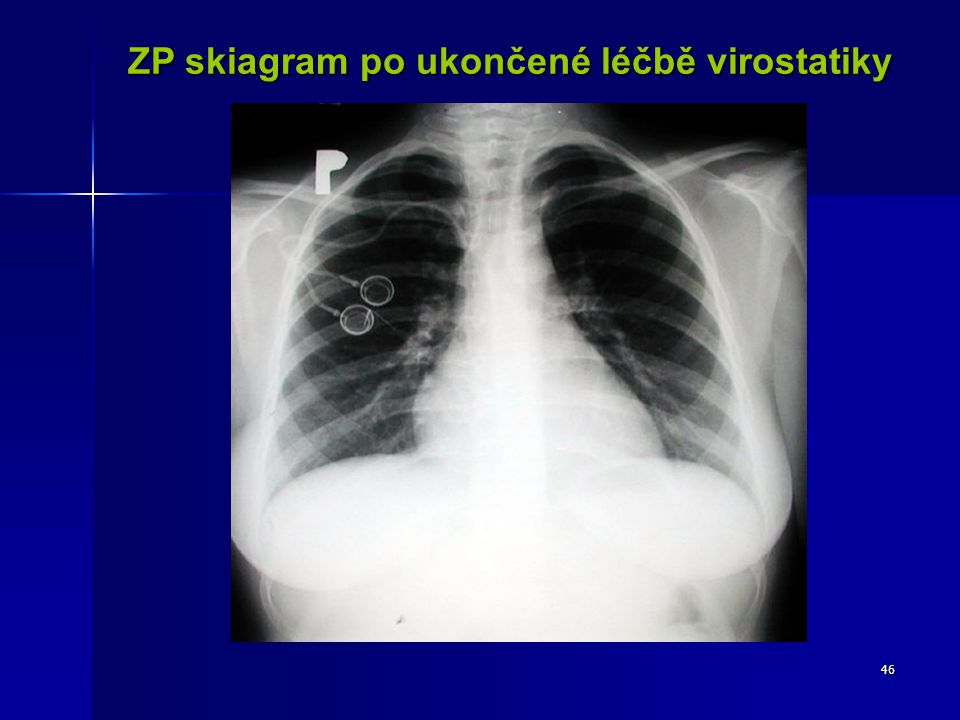 ZP skiagram po ukončené léčbě virostatiky