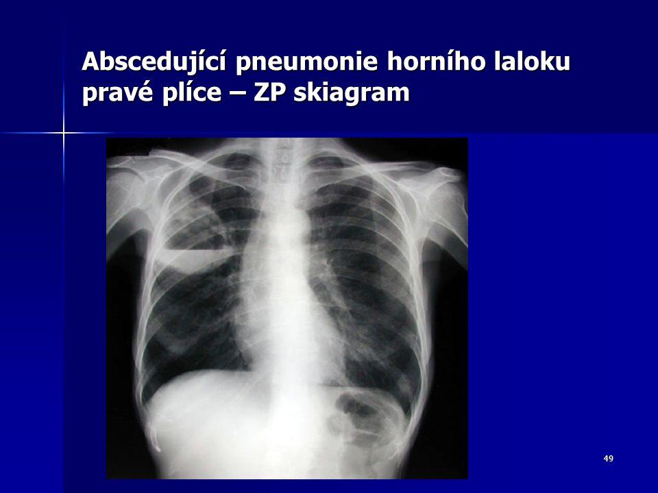 Abscedující pneumonie horního laloku pravé plíce – ZP skiagram
