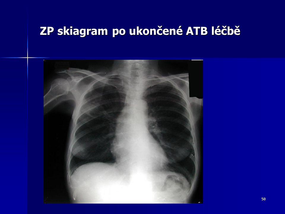 ZP skiagram po ukončené ATB léčbě