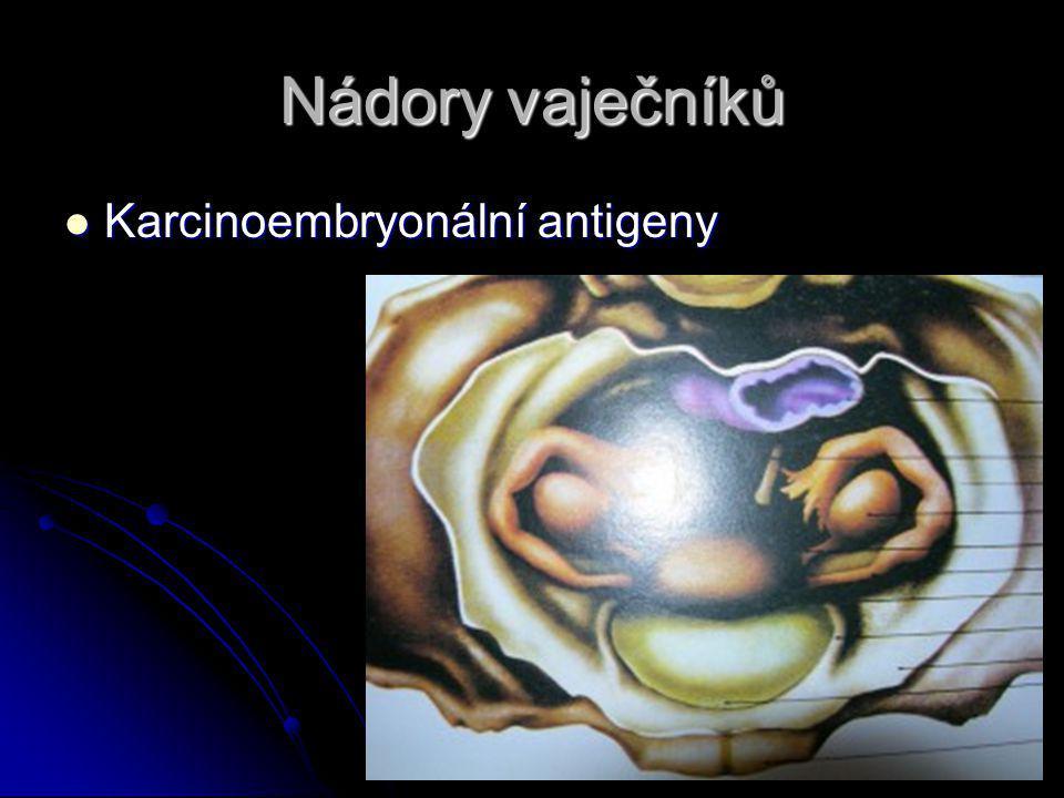 Nádory vaječníků Karcinoembryonální antigeny