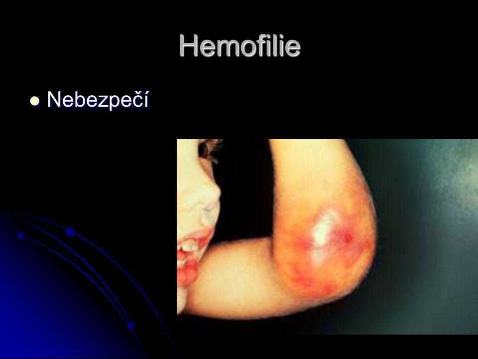 Hemofilie Nebezpečí