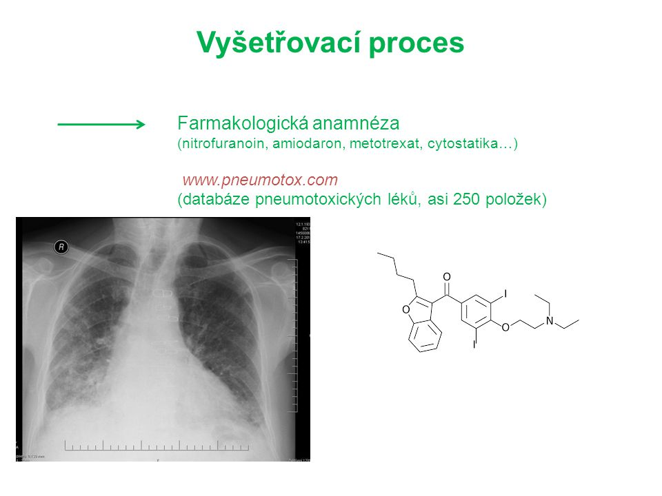 Vyšetřovací proces Farmakologická anamnéza www.pneumotox.com