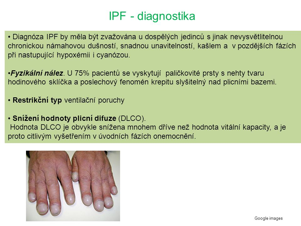 IPF - diagnostika