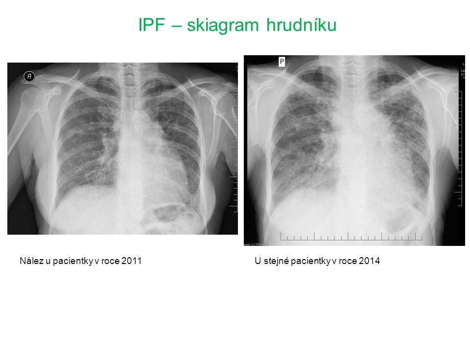 IPF – skiagram hrudníku