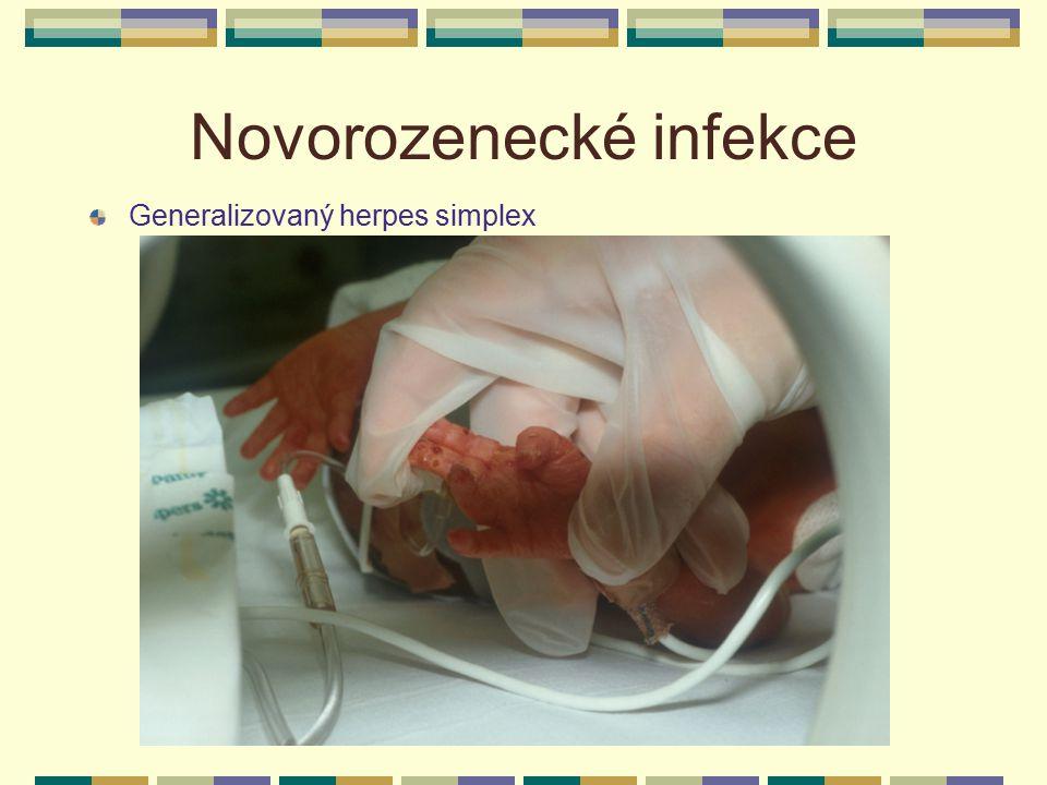 Novorozenecké infekce