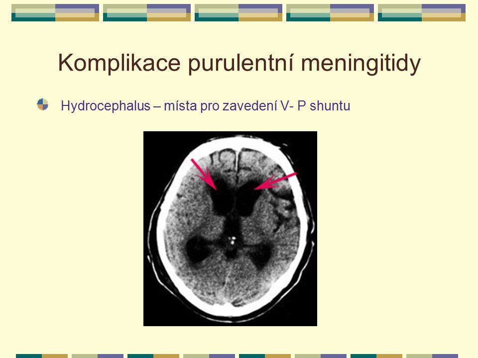 Komplikace purulentní meningitidy