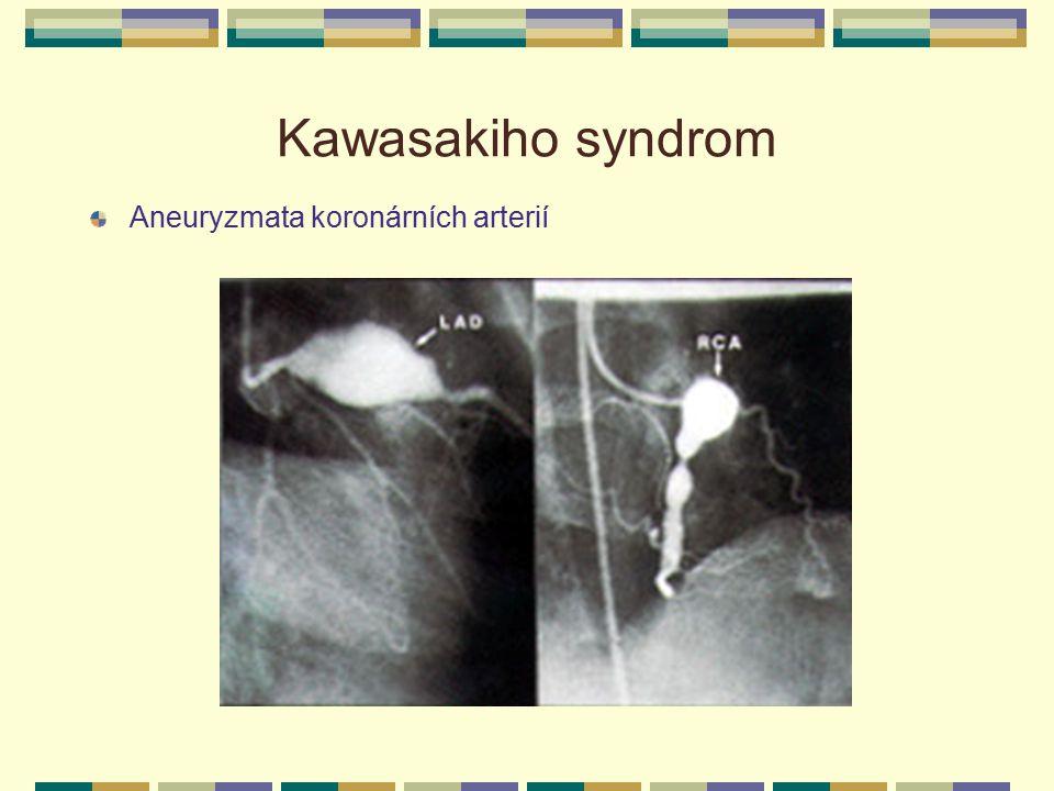 Kawasakiho syndrom Aneuryzmata koronárních arterií