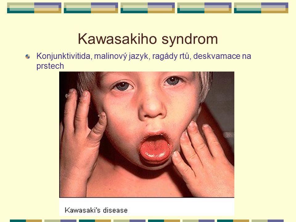 Kawasakiho syndrom Konjunktivitida, malinový jazyk, ragády rtů, deskvamace na prstech