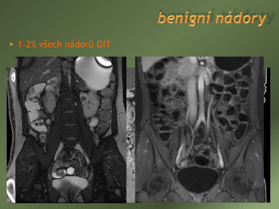 leiomyom (22-43% benigních tumorů, více v jejunu) adenom (14-20%)