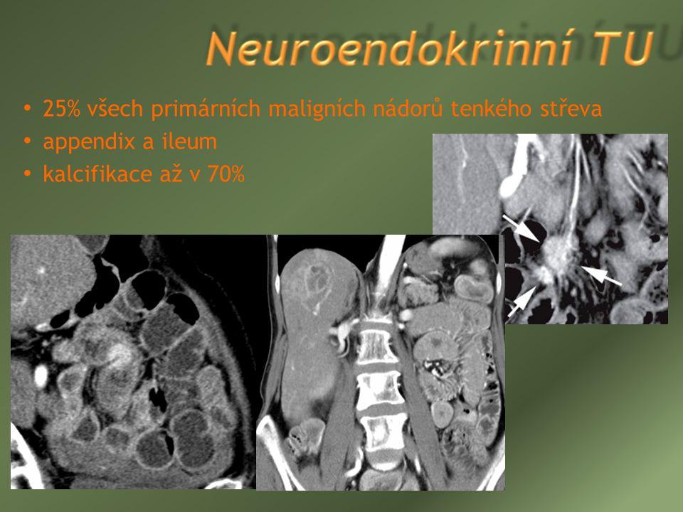25% všech primárních maligních nádorů tenkého střeva
