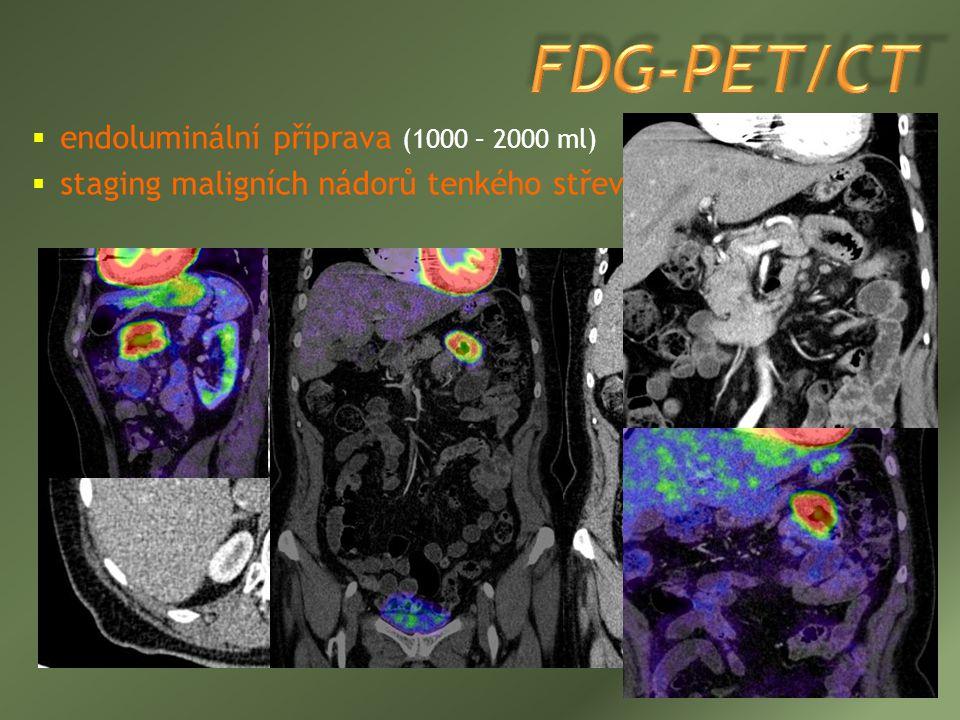 FDG-PET/CT endoluminální příprava (1000 – 2000 ml)