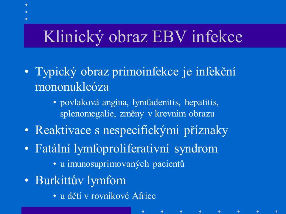 Klinický obraz EBV infekce