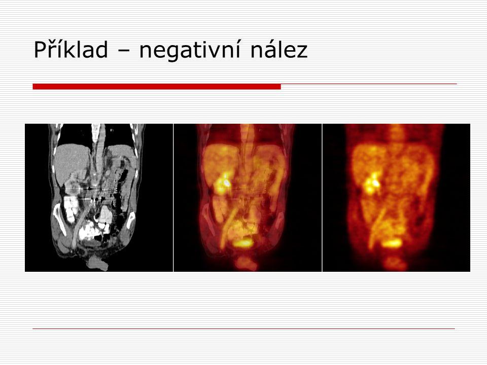 Příklad – negativní nález