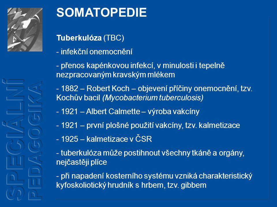 SPECIÁLNÍ PEDAGOGIKA SOMATOPEDIE Tuberkulóza (TBC) infekční onemocnění