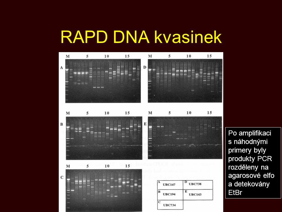 RAPD DNA kvasinek Po amplifikaci s náhodnými primery byly produkty PCR rozděleny na agarosové elfo a detekovány EtBr.